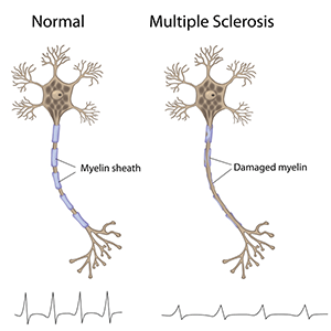 natural treatment for multiple sclerosis in Edwardsville, IL